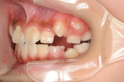 抜け ない 生える 乳歯 永久歯